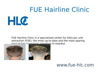 FUE Hairline Clinic.pptx