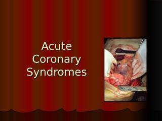 Acute Coronary Syndromes.ppt